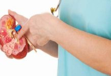 Treating Kidney Stones