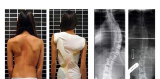 Scoliosis Awareness