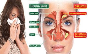 Treated For Sinusitis Without Surgery