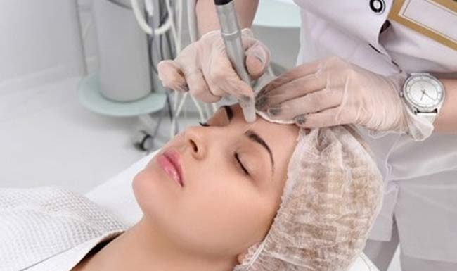 Laser for Beauty Treatments