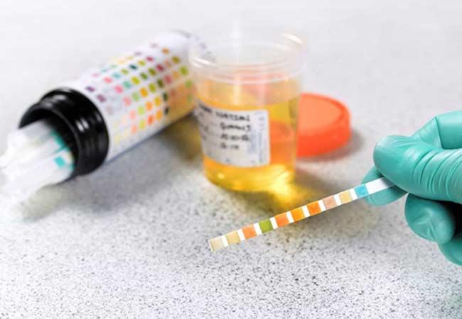 shows up on a drug test