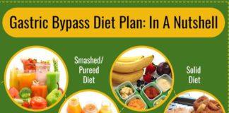 Gastric Bypass Diet Plan