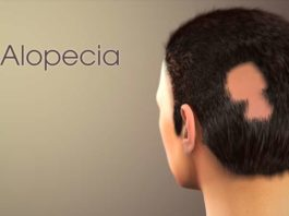 Alopecia Treatment