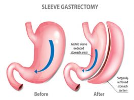How much weight can you lose from a gastric sleeve